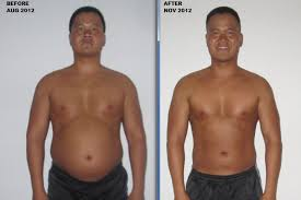 Weight loss valencia ca image 2